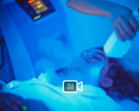 Lifestyle: CryoGlow Facial